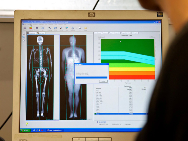 dexa scan for body fat loss